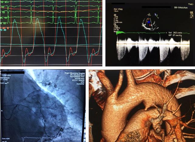 Imágenes de Patologías cardíacas y cardiovasculares